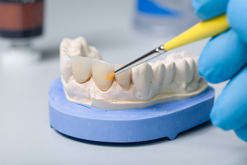 歯科技工士研修
